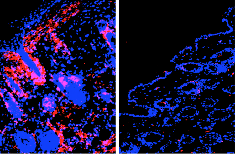 Periostin (shown in pink) is being used in the clinic as a marker for allergic diseases such as asthma as well as atopic dermatitis. Left image: Periostin is overexpressed in atopic dermatitis. Right image: Blocking LIGHT also blocks periostin expression.