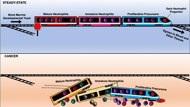 Cancer can derail neutrophil development. Image courtesy of Daniel Araujo, La Jolla Institute for Immunology.