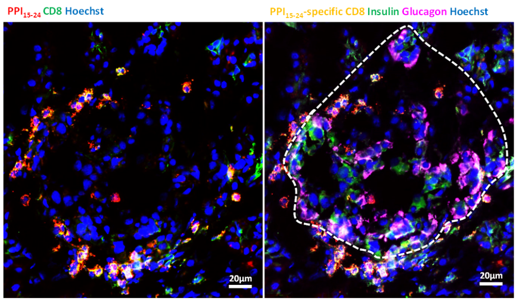 Yellow staining shows CD*+T cells poised to target preproinsulin. The white outline on the right shows the perimeter of an insulin-containing islet in a patient with type 1 diabetes. The image shows that the preproinsulin-specific T cells can wait very close islets, probably poised to destroy the beta cells inside. Courtesy of Von Herrath Lab, La Jolla Institute for Immunology