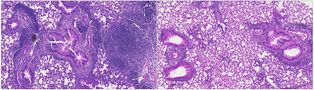 Left: Lung tissue of untreated mice. Right: Lung tissue of mice treated with antibodies blocking OX40L and CD30L. Image courtesy of Gurupreet Sethi, La Jolla Institute for Immunology.